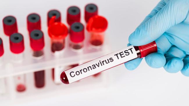 corona test 1